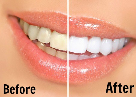 Teeth Whitening and Pregnancy - What to Expect