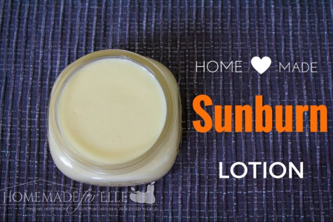 Homemade Sunburn Lotion | homemadeforelle.com