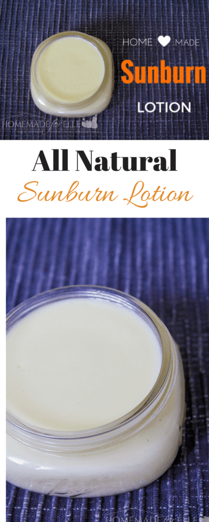 Homemade Sunburn Lotion - soothe painful sunburns and nourish your skin with this healing, all natural sunburn lotion | homemadeforelle.com*