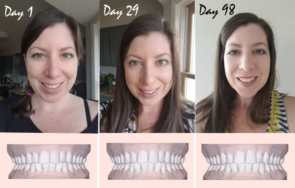 Invisible Braces 3 month update showing before and after pictures with Candid Co