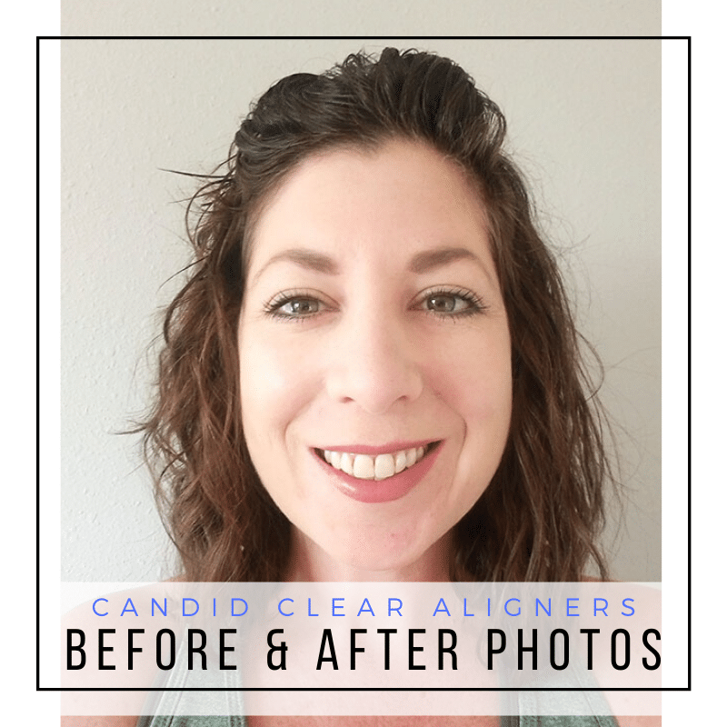 Candid Before and After Photos - Clear Aligners